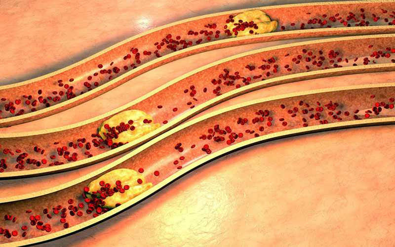 hypercholesterolemia treatment